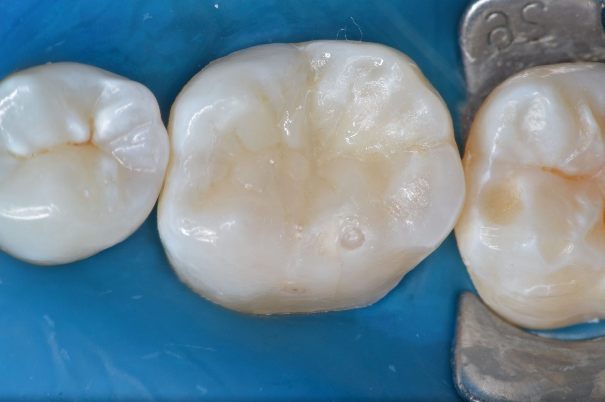 To Fill Or Restore Dr Italo Moraes And Dr Bruno Carlini